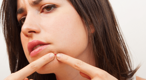 How can I get rid of pimples?