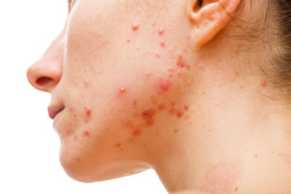 Image result for What Causes Acne