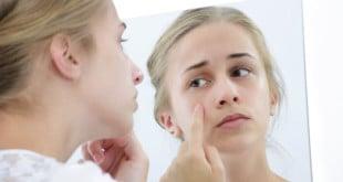 mild acne scars